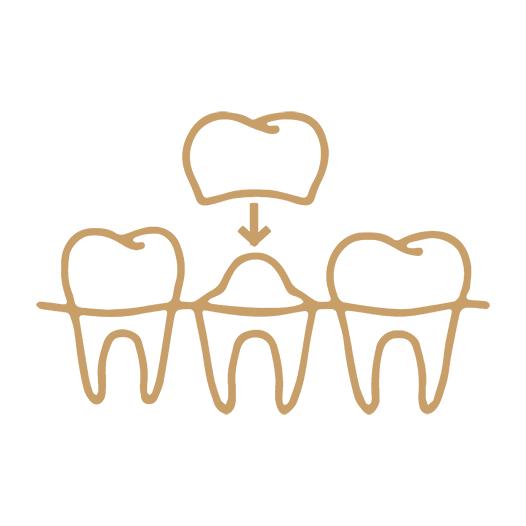 Icono para la página Prótesis dental en Mataró